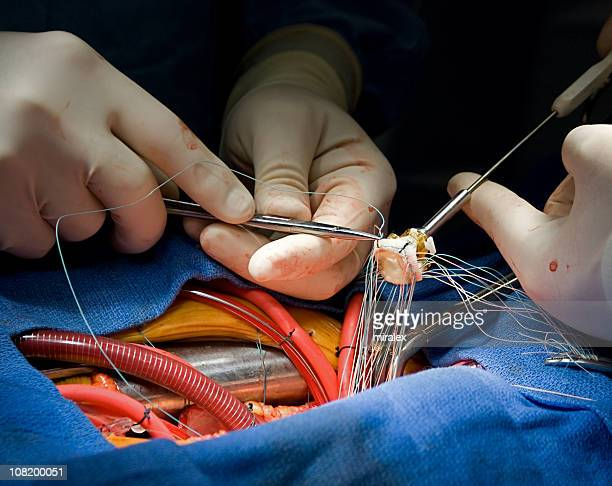 heart surgery aortic valve replacement - suture stock photos and pictures