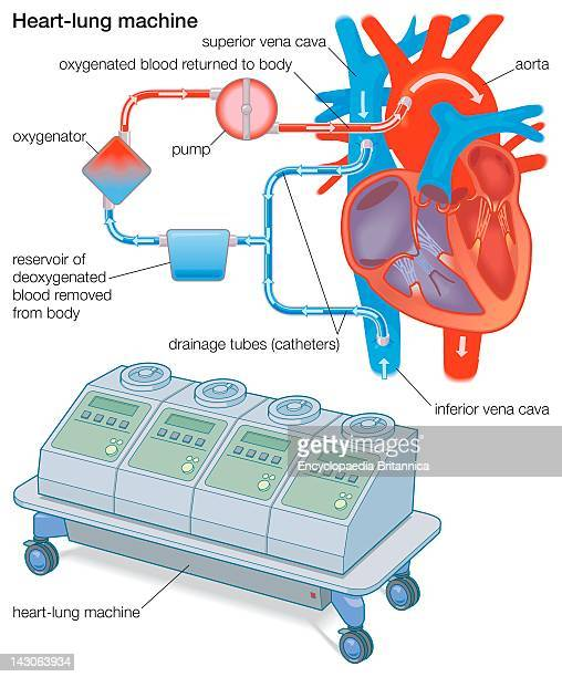 A HeartLung Machine Diverts Blood From The Body To An Oxygenator Which Removes Co2 Adds O2 And Returns The Blood To The Body