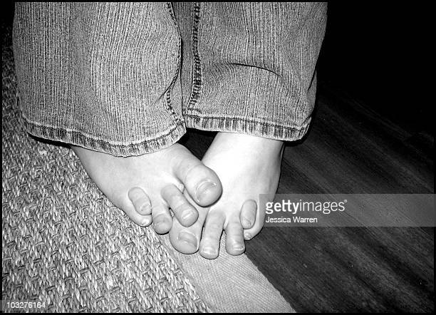 heather's toes - of deformed people stock pictures, royalty-free photos & images