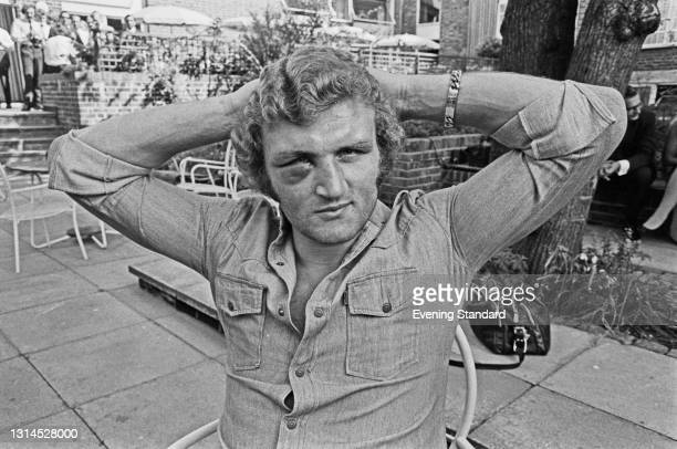 Heavyweight boxer Joe Bugner sports a black eye after his fight with Joe Frazier at Earl's Court in London, UK, 11th July 1973.