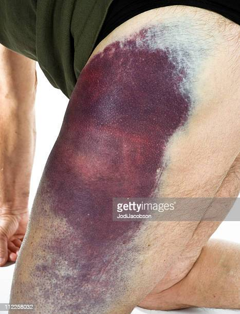 hematoma from a motorcycle accident - bruise stock photos and pictures