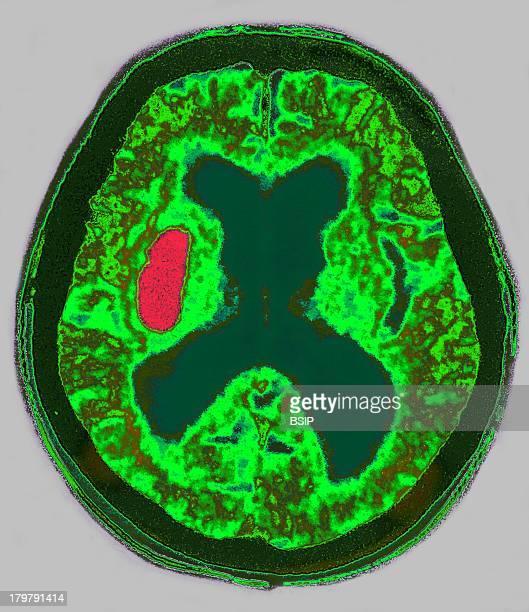 Hemorrhage Axial Brain CT Scan