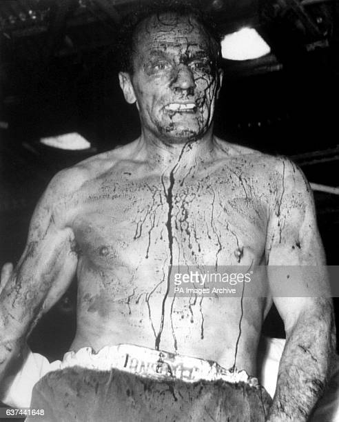 Henry Cooper walks back to his corner with blood streaming from cuts around his left eye after the referee stopped the fight at the end of the sixth...