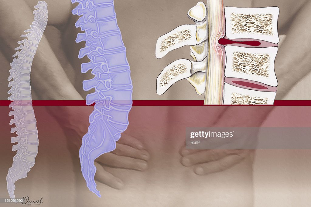 Herniated Disk, Illustration : News Photo