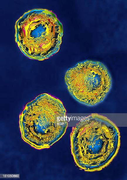 Herpes Simplex Virus Type 2 Hsv2 Image Hdri Made According To A View Under Transmission Electron Microscope Viral Diameter 180Nm This Virus Is...