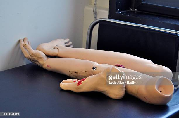 High Angle View Of Artificial Limb On Bed In Hospital