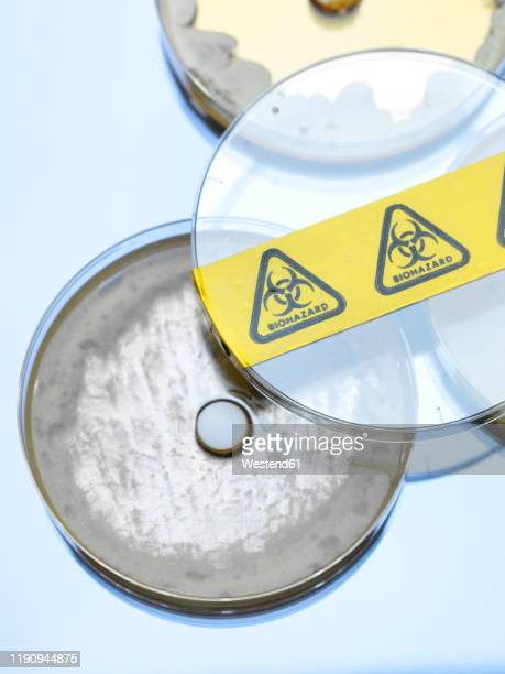 high angle view of drug testing in petri dishes at laboratory - antibiotic resistant stock pictures, royalty-free photos & images