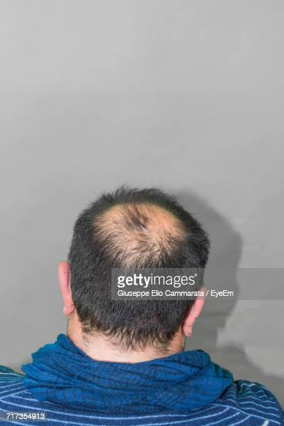 High Angle View Of Man With Receding Hairline Against Wall