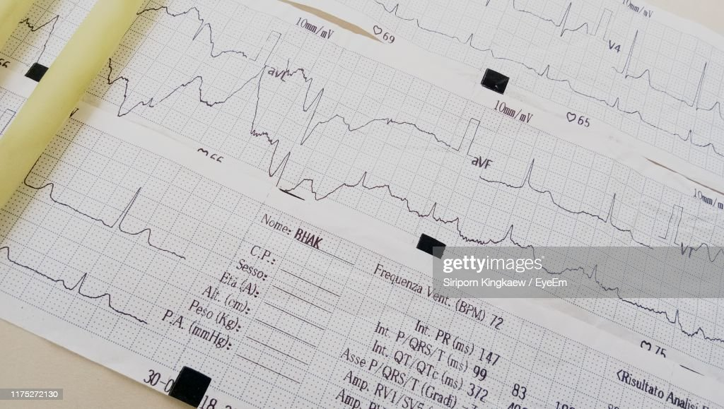 High Angle View Of Medical Report : Stock Photo
