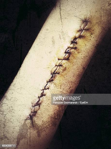 high angle view of stitches in human skin - suture stock photos and pictures