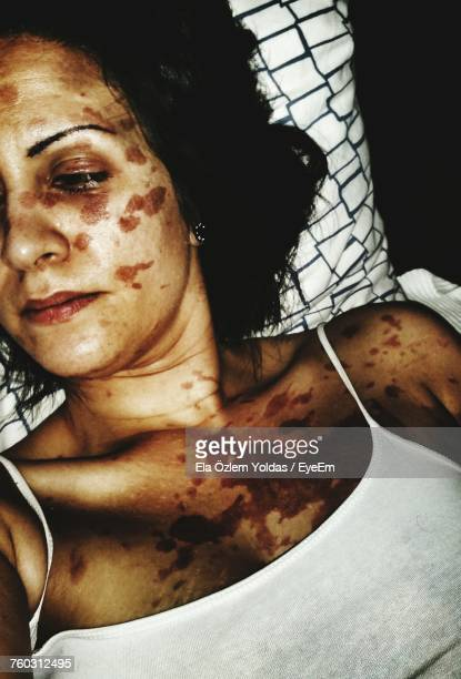 high angle view of woman with skin disease lying on bed at home - melanom stock-fotos und bilder