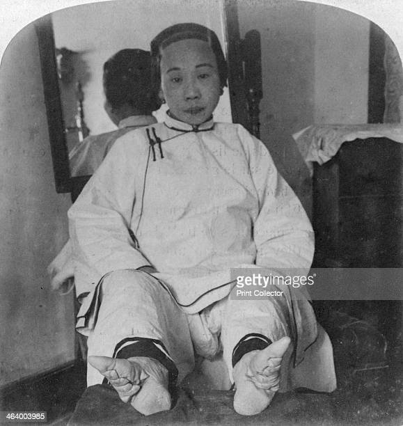 'A high caste lady's dainty 'lily feet' showing method of deformity' China 1900 Shoe worn on great toe only Stereoscopic card Detail