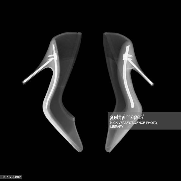 high heel shoes, x-ray - high heels stock pictures, royalty-free photos & images