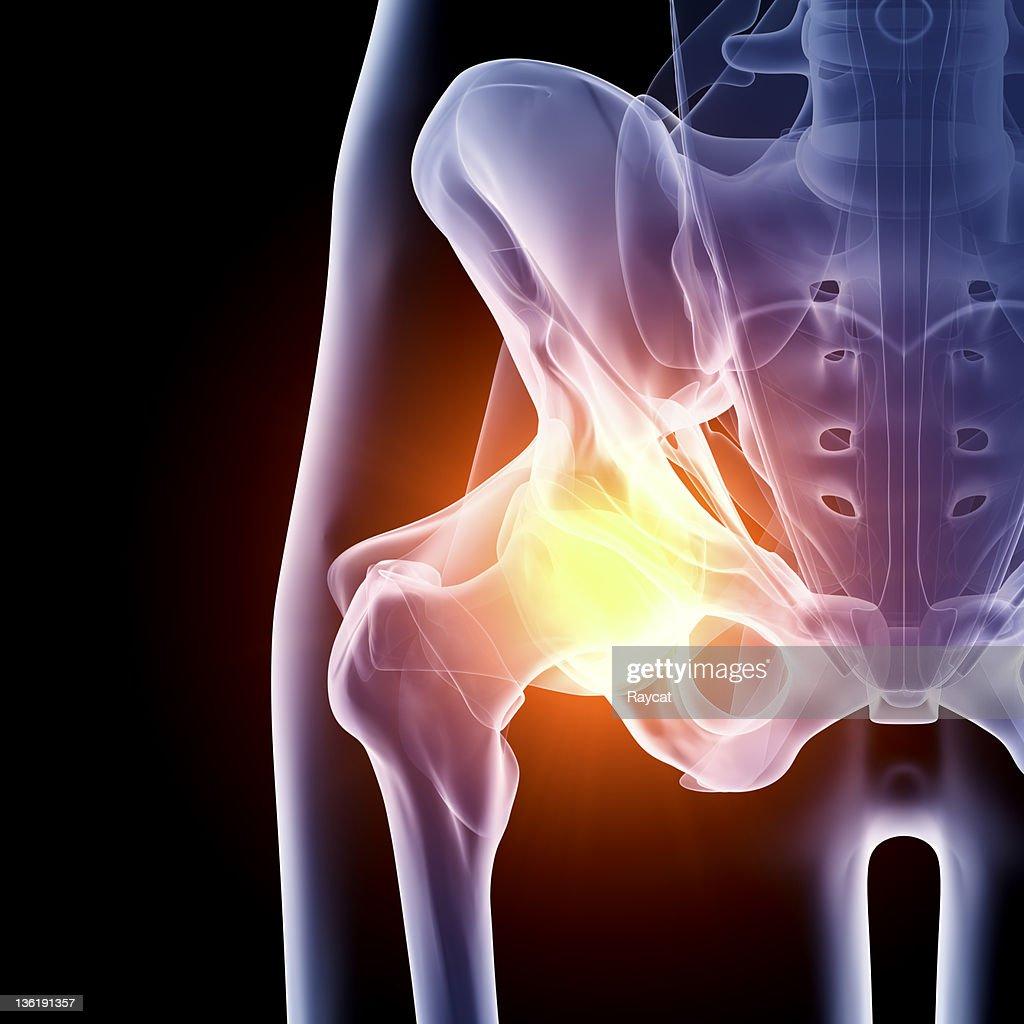 Hip in pain x-ray : Stockfoto