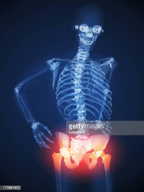 Hip Pain Illustration