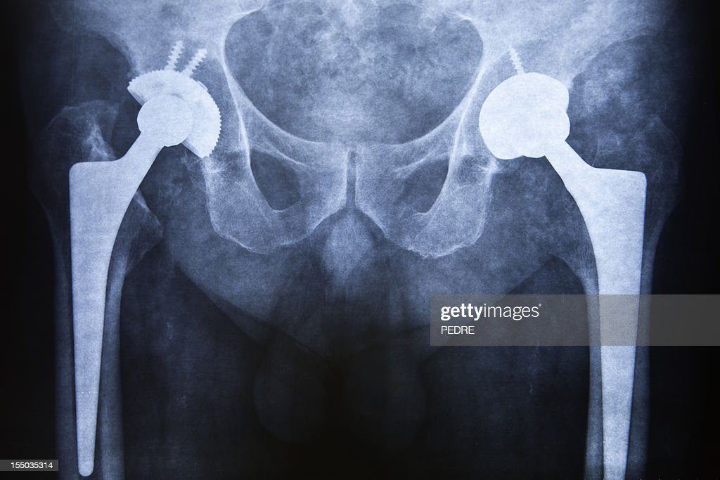 Hip replacement : Stock Photo