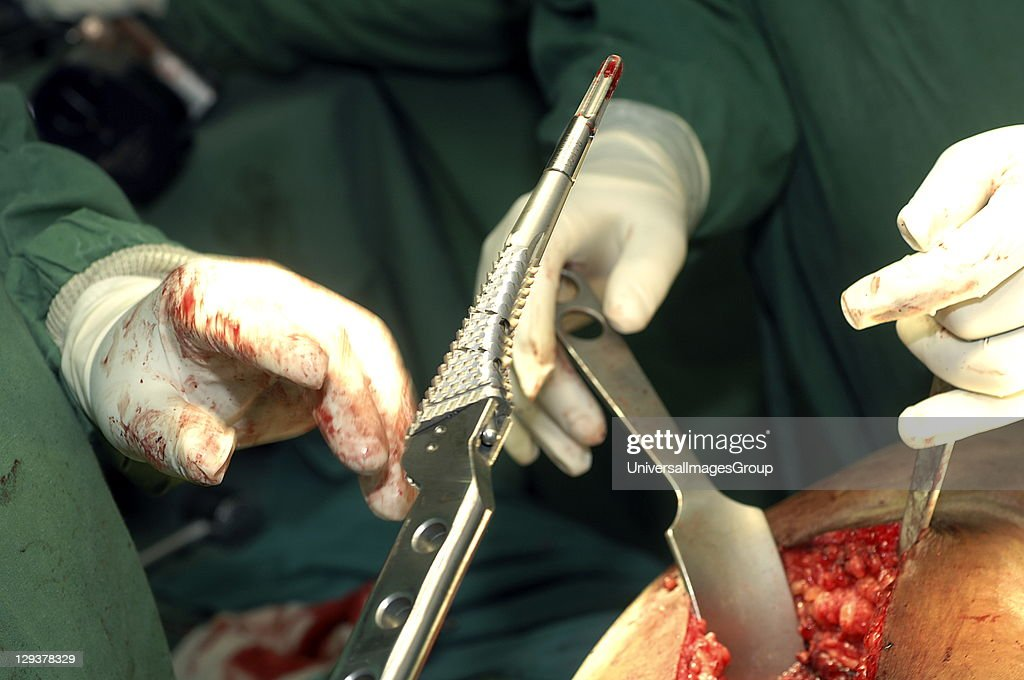 Hip Replacement. Surgeon is handed broach. Inserting this increases bore of femoral canal by rasping underlying surface. It detaches from impactor handle to form femoral stem for trial head. : News Photo