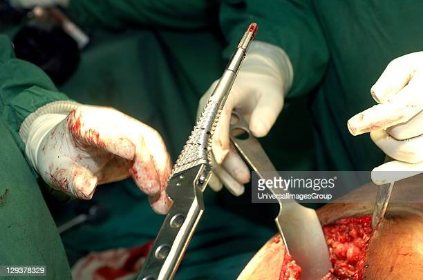 Hip Replacement Surgeon is handed broach Inserting this increases bore of femoral canal by rasping underlying surface It detaches from impactor...