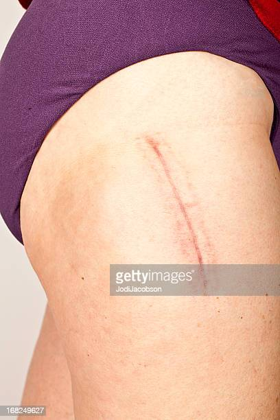 hip replacement surgery scar - medical stitches stock photos and pictures