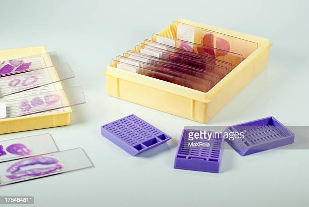 histology slides and cassette - histology stock photos and pictures