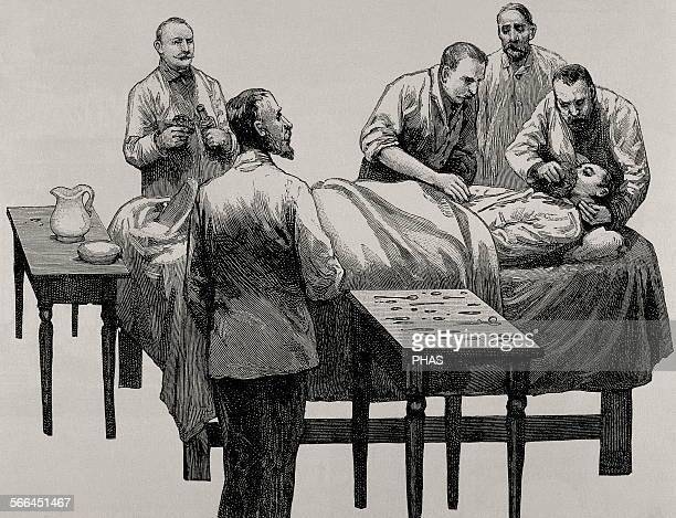 History of medicine Chloroform anesthesia Engraving 19th century