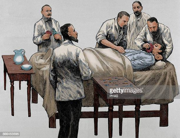 History of medicine Chloroform anesthesia Engraving 19th century Colored