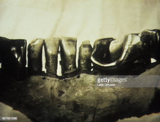 Hitler's jawbone is kept at the Federal Security Service of the Russian Federation archive from the end of the World War II and seems to be the only...