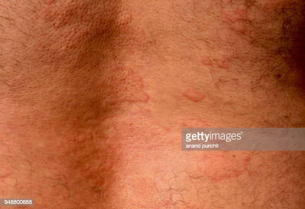 hives - urticaria, skin disease - ronchas fotografías e imágenes de stock