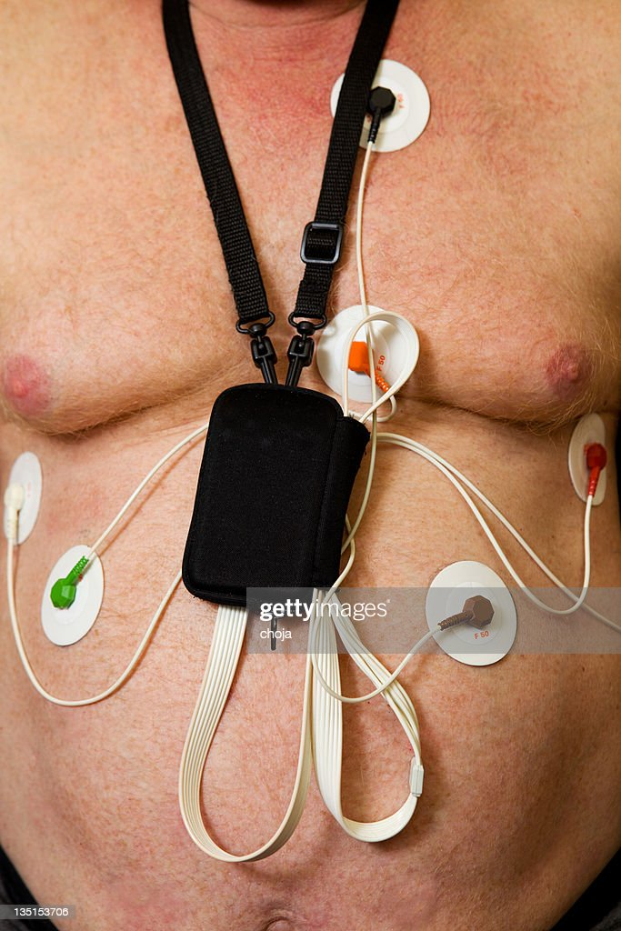 Holter monitor on patients chest : Stock Photo