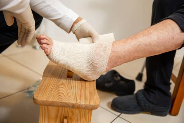 home verzorger helpen senior vrouw om haar gewonde enkel verband - stock photo - sociale zekerheid stockfoto's en -beelden