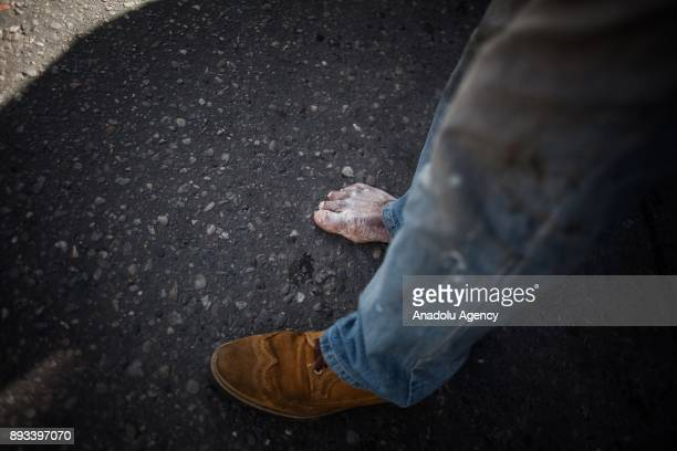 A homeless diabetic man's infected foot is seen in Bogota Colombia on December 15 2017 Homeless people who are called 'CHC' Ciudadanos Habitantes de...