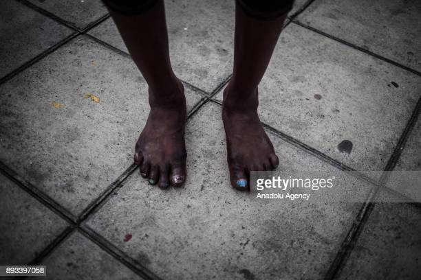 A homeless diabetic woman's infected feet are seen in Bogota Colombia on December 15 2017 Homeless people who are called 'CHC' Ciudadanos Habitantes...