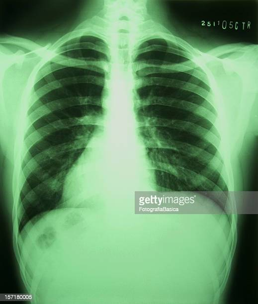 homer radiography - clavicle stock photos and pictures
