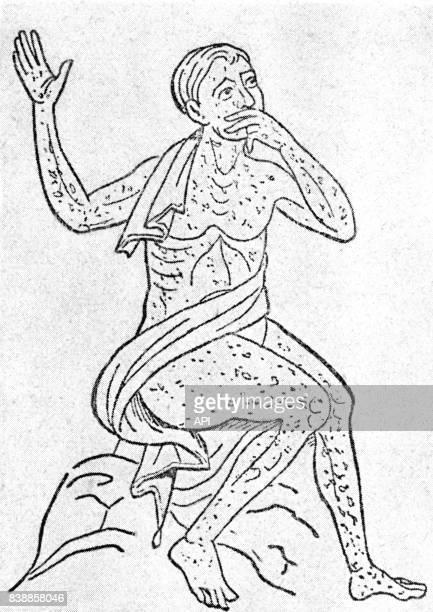 Homme atteint de la syphilis au XVème siècle