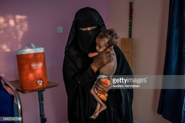 Homoudah Mohammed holds her son Moataz before he is weighed while undergoing treatment for severe acute malnutrition at a health clinic on September...