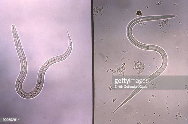 Hookworm and strongyloides filariform infective stage larvae revealed in the micrograph film, 1980. Image courtesy Centers for Disease Control / Dr...