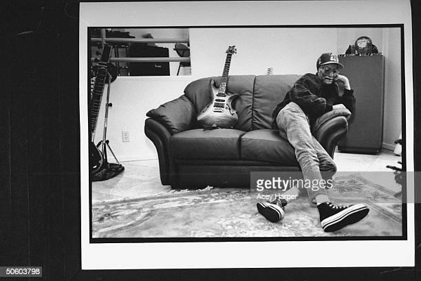 Horribly scarred disfigured burn victim David Jordan Robinson aka David Rothenberg sitting next to his electric guitar on couch at home David was...