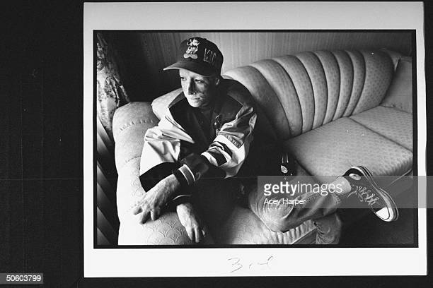 Horribly scarred disfigured burn victim David Jordan Robinson aka David Rothenberg sitting on couch at home as he reflects on the time in '83 when...