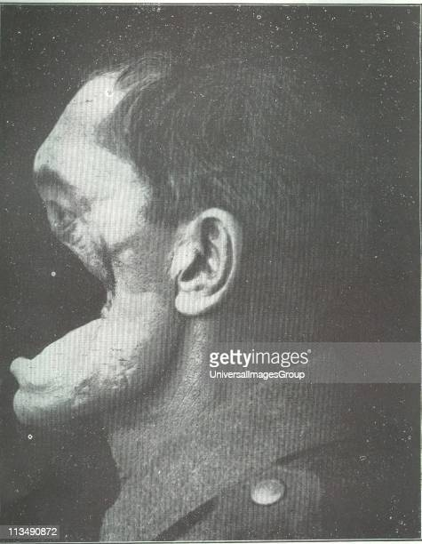Horror of war Facial injuries to German soldier in World War I