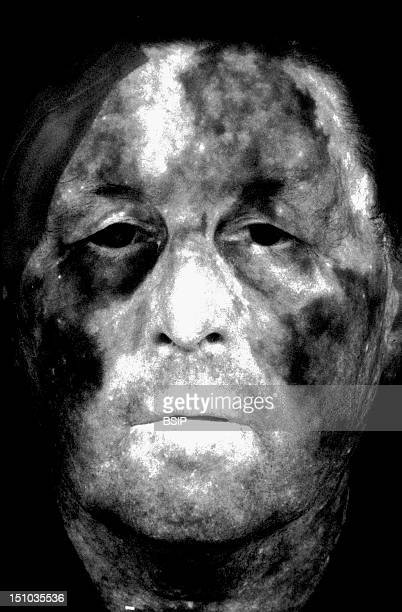Horton's Syndrome, Also Known As Temporal Or Giant Cell Arteritis. Fluorescein Angiography Of The Face.