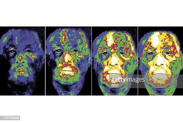 Horton'S Syndrome Hortons Syndrome Also Known As Temporal Or Giant Cell Arteritis Fluorescein Angiography Of The Face Colorized