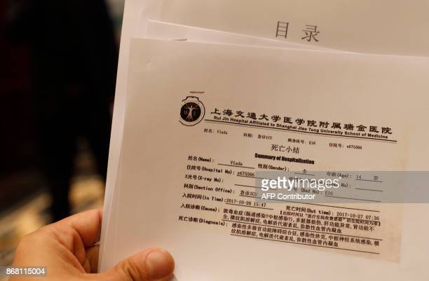 A hospitalization summary of Vlada Dzyuba a 14yearold Russian model is displayed during a press briefing in Shanghai on October 30 2017 The Chinese...