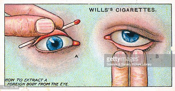 How to extract a foreign body from the eye' Wills' cigarette card 1913 One of a series of 50 'First Aid' cigarette cards issued by W D H O Wills When...