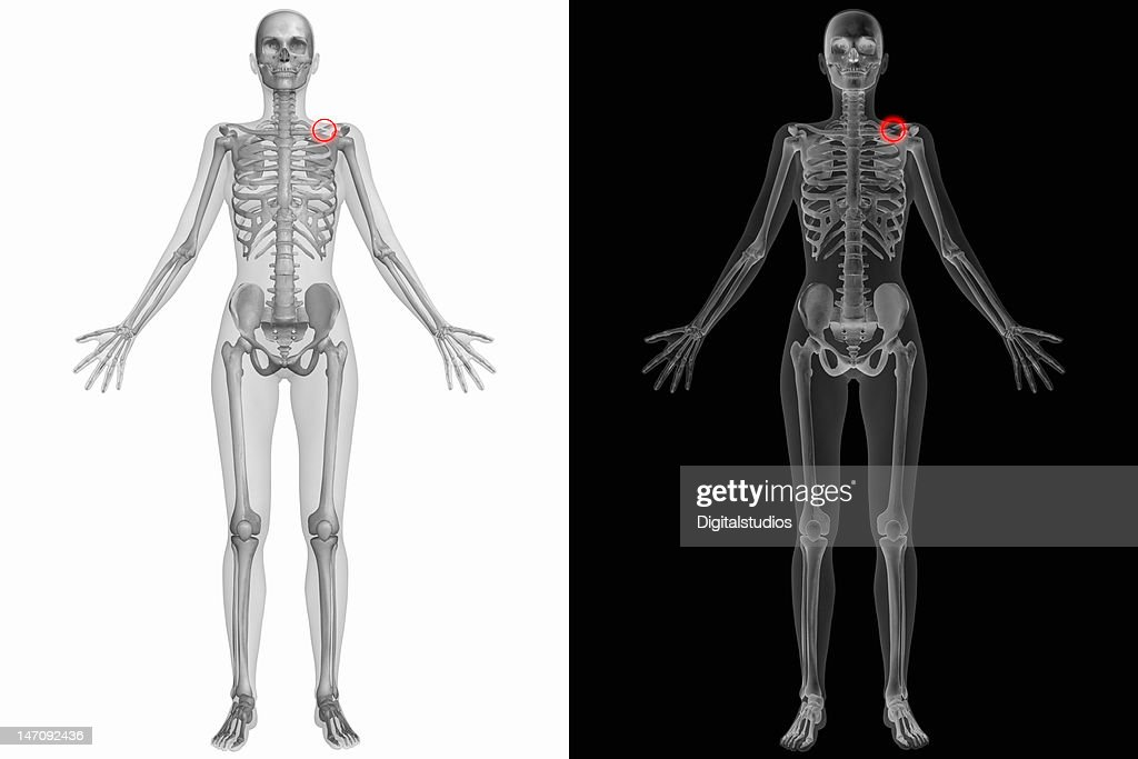 Human Anatomy Broken Left Clavicle Stock Photo Getty Images