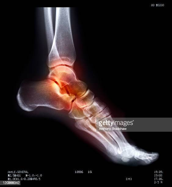 Human ankle in pain