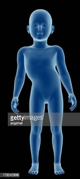 Corpo humano de uma criança com escoliose