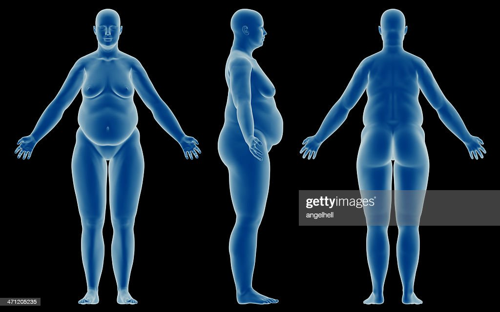 Human Body Of A Overweight Woman For Study Stock Photo | Getty Images