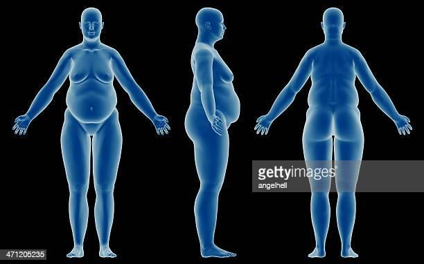 Corpo humano de um gordo mulher de Estudo