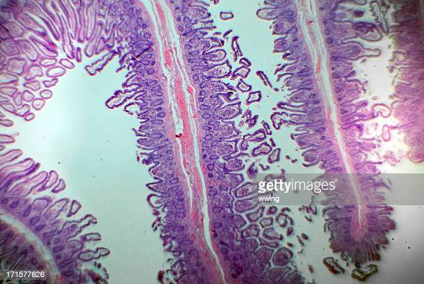 intestino humano portaobjetos de microscopio - intestino humano fotografías e imágenes de stock