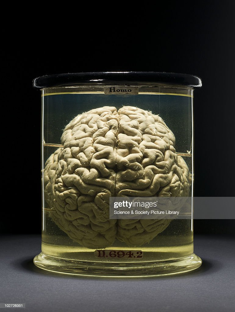 Human brain. Front view. : News Photo